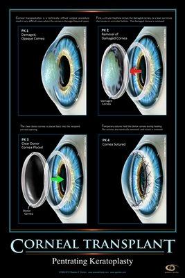 CORNEAL TRANSPLANT CONCEPT Eye Wall Chart v.6 #610A