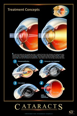 CATARACTS -TREATMENT CONCEPTS Eye Wall Chart #402A