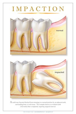 """IMPACTION"" - (white) Dental Wall Chart DWC192"