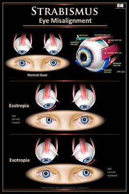 STRABISMUS v.2 Eye Wall Chart #706