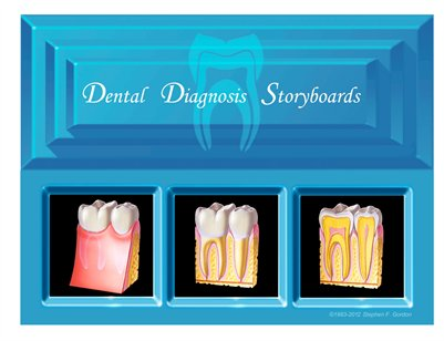 Dental Diagnosis Storyboard - Portfolio