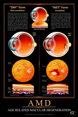 AGE RELATED MACULAR DEGENERATION AMD Eye Wall Chart #513A