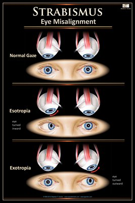 STRABISMUS Eye Wall Chart #705