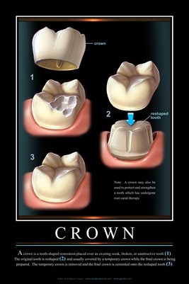 """CROWN"" - (black) Dental Wall Chart DWC111"