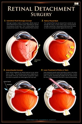 RETINAL DETACHMENT SURGERY Eye Wall Chart #511