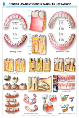 Dentist - Patient Consultation Illustrations Wall Chart -(white)DWC02
