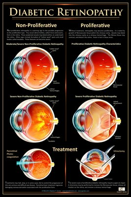 DIABETIC RETINOPATHY Eye Wall Chart #515