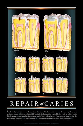 """REPAIR OF CARIES"" #2 - (black) Dental Wall Chart DWC503"