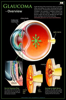 GLAUCOMA - OVERVIEW Eye Wall Chart v.2 #311