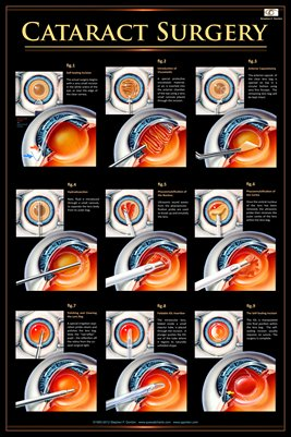 CATARACT SURGERY v.1 Eye Wall Chart #404