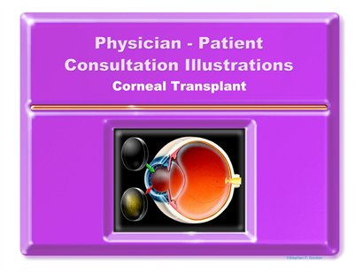 CORNEAL TRANSPLANT - Physician-Patient Consultation Illustrations Portfolio