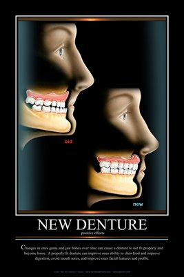 """NEW DENTURE"" - (black) Dental Wall Chart DWC221"