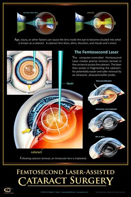 FEMTOSECOND LASER ASSISTED CATARACT SURGERY Eye Wall Chart #410A