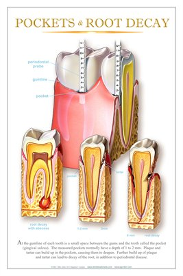 """POCKETS & ROOT DECAY"" - (white) Dental Wall Chart DWC406"