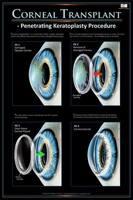 CORNEAL TRANSPLANT CONCEPT Eye Wall Chart v.5 #610