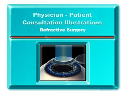 REFRACTIVE SURGERY - Physician-Patient Consultation Illustrations Portfolio