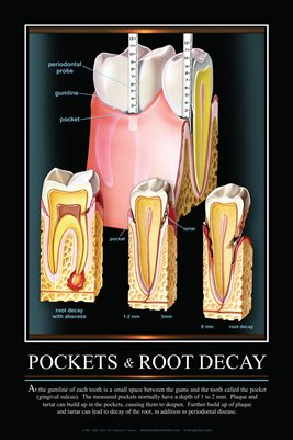 """POCKETS & ROOT DECAY"" - (black) Dental Wall Chart DWC405"