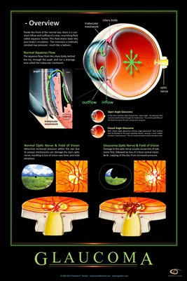 GLAUCOMA - OVERVIEW Eye Wall Chart v.3 #308A