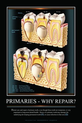 """PRIMARIES-WHY REPAIR?"" - (black) Dental Wall Chart DWC251"