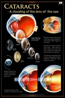 CATARACT CONCEPTS Eye Wall Chart #403