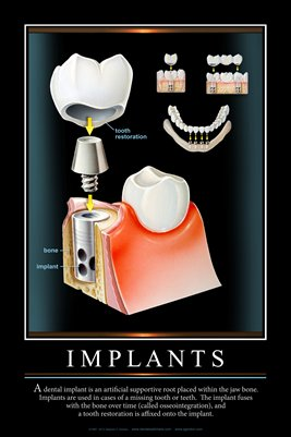 """IMPLANTS"" #2 - (black) Dental Wall Chart DWC123"
