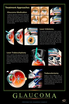 GLAUCOMA - TREATMENT APPROACHES Eye Wall Chart #309A
