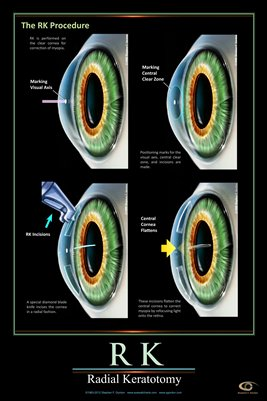 RADIAL KERATOTOMY PROCEDURE Eye Wall Chart #601