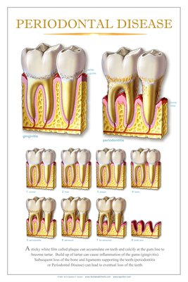 """PERIODONTAL DISEASE"" - (white) Dental Wall Chart DWC602"