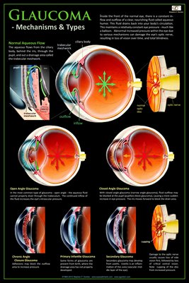 GLAUCOMA - MECHANISMS & TYPES Eye Wall Chart v.2 #307