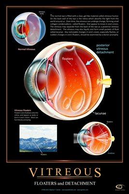 VITREOUS FLOATERS & POSTERIOR DETACHMENT Eye Wall Chart #502A