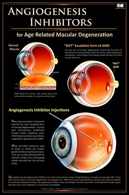 ANGIOGENESIS INHIBITORS FOR AMD Eye Wall Chart #514
