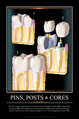 """PINS, POSTS & CORES"" - (black) Dental Wall Chart DWC151"