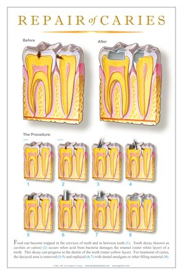 """REPAIR OF CARIES"" #2 - (white) Dental Wall Chart DWC504"