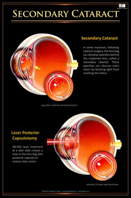 SECONDARY CATARACT Eye Wall Chart #408