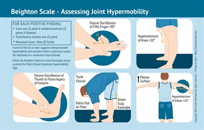 Beighton Scale - Assessing Joint Hypermobility | Quick Reference Card