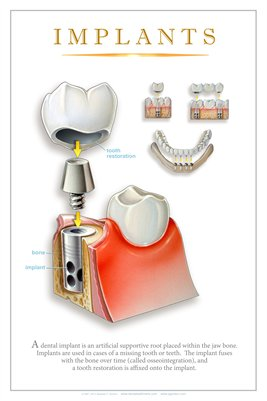 """IMPLANTS"" #2 - (white) Dental Wall Chart DWC124"