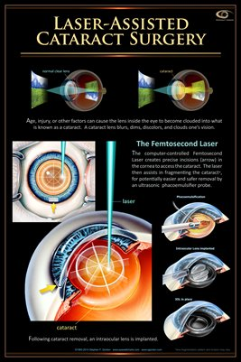 FEMTOSECOND LASER ASSISTED CATARACT SURGERY Eye Wall Chart #410