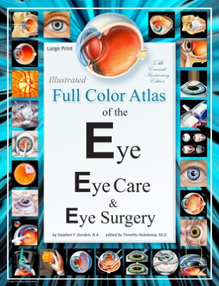 Illustrated Full Color Atlas of the Eye, Eye Care, & Eye Surgery - LARGE PRINT Edition