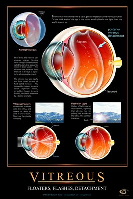 VITREOUS FLOATERS & FLASHES Eye Wall Chart #501A