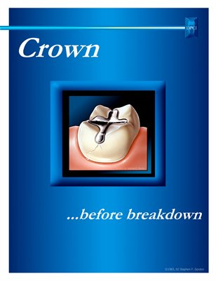 Crown...Before Breakdown Portfolio