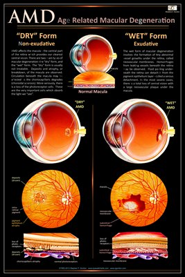 AGE RELATED MACULAR DEGENERATION AMD Eye Wall Chart #513