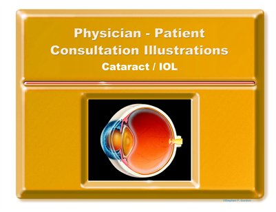 CATARACT/IOL - Physician-Patient Consultation Illustrations Portfolio