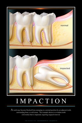 """IMPACTION"" - (black) Dental Wall Chart DWC191"