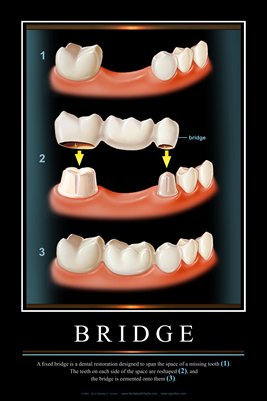 """BRIDGE"" - (black) Dental Wall Chart DWC901"