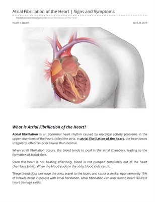 Atrial Fibrillation of the Heart | Signs and Symptoms