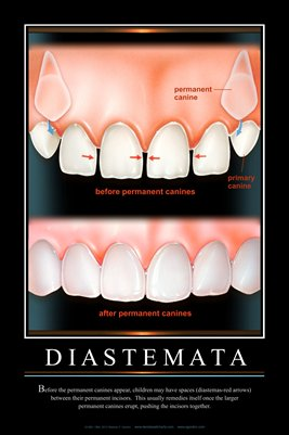 """DIASTEMATA"" - (black) Dental Wall Chart DWC231"