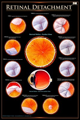TYPES OF RETINAL DETACHMENT Eye Wall Chart #507