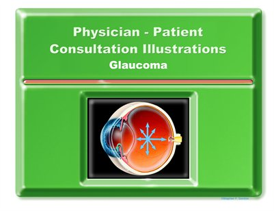GLAUCOMA - Physician-Patient Consultation Illustrations Portfolio