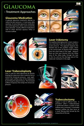 GLAUCOMA - TREATMENT APPROACHES Eye Wall Chart #309