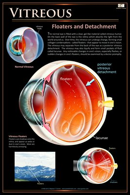VITREOUS FLOATERS & POSTERIOR DETACHMENT Eye Wall Chart #502